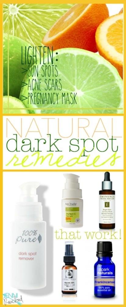 Natural Dark Spot Remedies