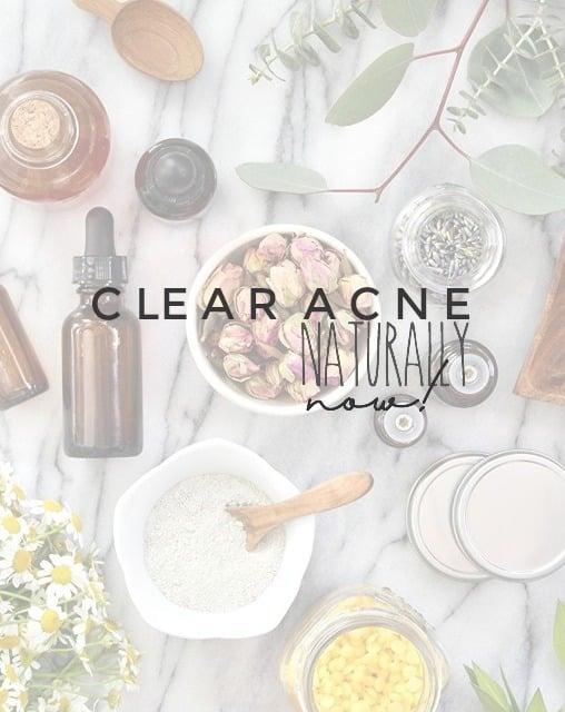 Body Unburdened Healing Acne